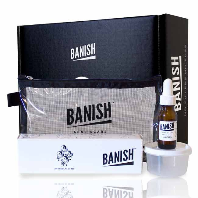 banish-kit-black-box_1024x1024